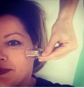 Trattamento di coppettazione viso o cupping therapy per il ringiovanimento del viso ed i trattamenti anti età.