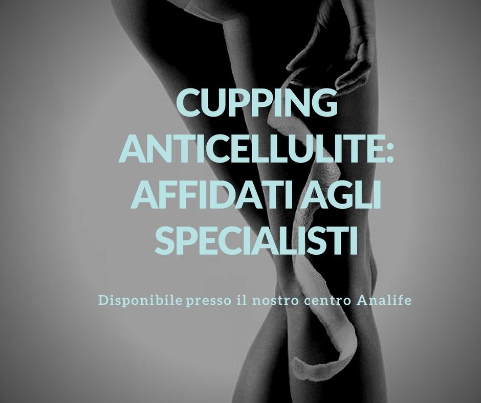 Cupping Therapy: meglio rivolgersi agli specialisti